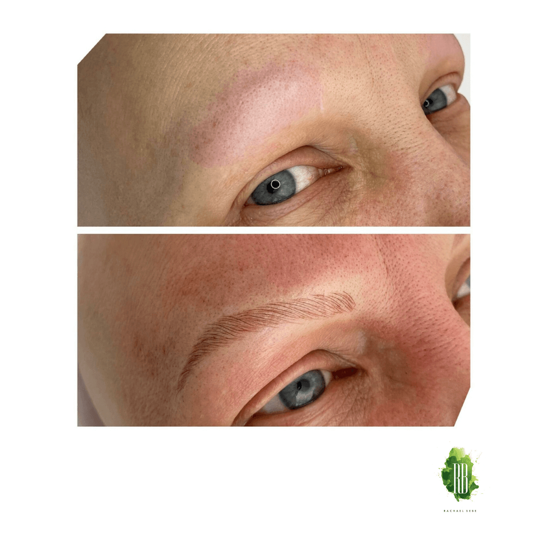 Cosmetic Tattoo Microblading on Alopecia Skin by Rachael Bebe (complimentary Service)