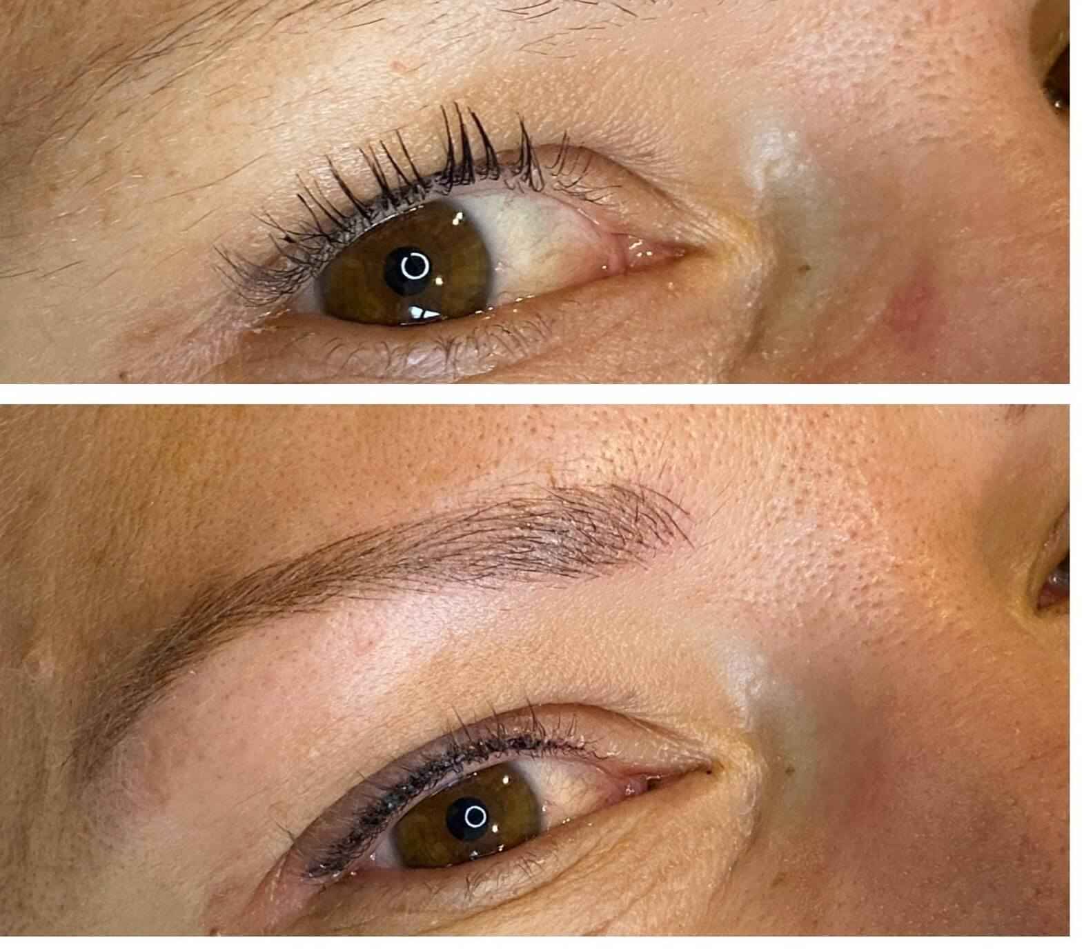 Eyeliner Tattooing Before and After Photos